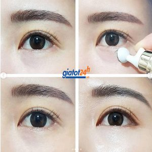 thanh lăn trị thâm mắt cindel tox có tốt không